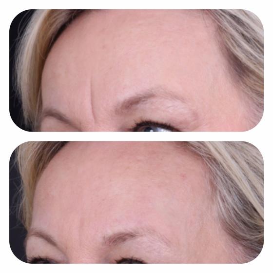 Fortfarande en bra effekt efter 1 behandling av fillers och botox i beskymmersrynkan.  1 år har gått efter första behandlingen.