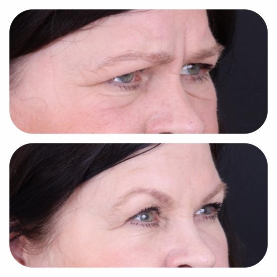 Botox och Juvéderm